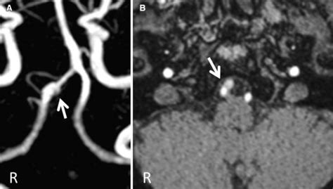 MRA and MRA source image findings in vertebral artery ...