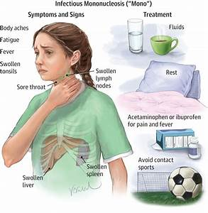 Infectious Mononucleosis Allergy And Clinical Immunology