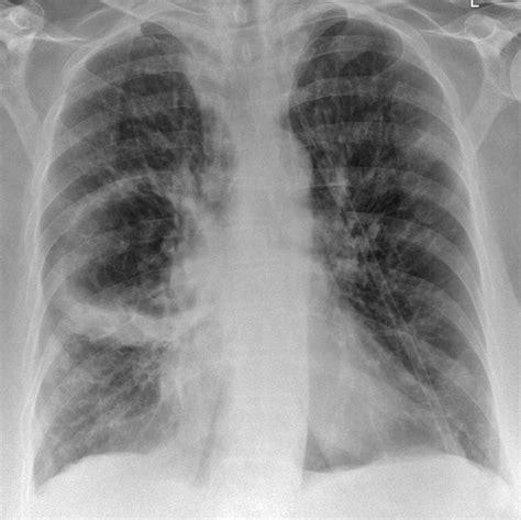 Lung Abscess Image Radiopaediaorg