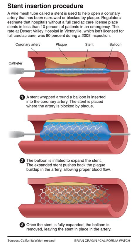 What Is Difference Between Cardiac Bypass And Stent