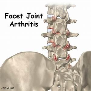 rhizotomy for back pain