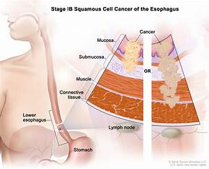 Esophageal Cancer Treatment  Adult   Pdq U00ae   Patients