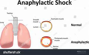 Anaphylactic Shock Stock Illustration 442153639