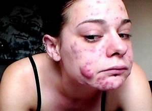 Horrible Skin Diseases Related Keywords - Horrible Skin ...