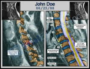 what is listhesis of the spine