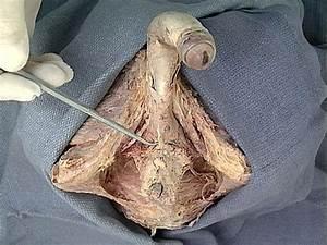Human Anatomy - Lab 42 Step 16