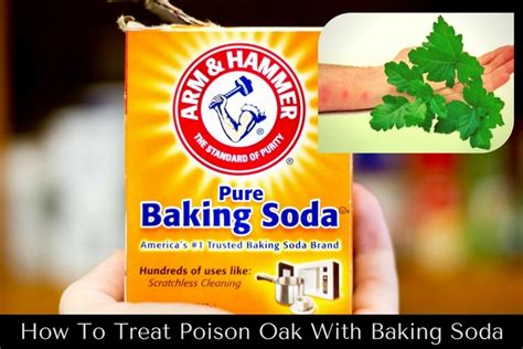 treat poison oak  baking soda
