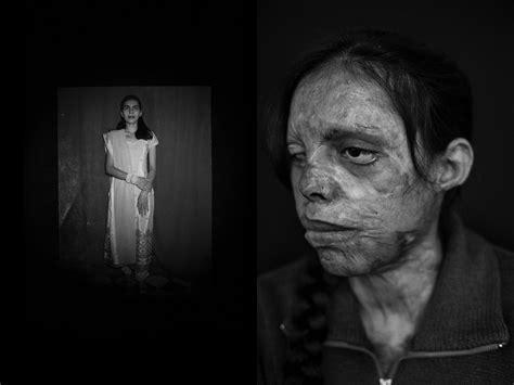 acid survivors  india  jordi pizarro world