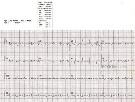 Anterior Left Ventricular Aneurysm