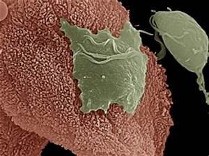 Viruses of protozoan parasites may exacerbate human disease