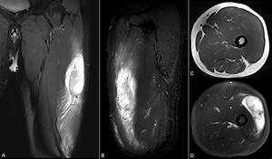 Left Thigh Myxofibrosarcoma  U2014 Clinical Mri