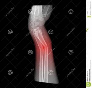 X-ray Of Broken Arm Royalty Free Stock Images - Image ...