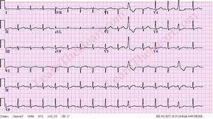 Premature Ventricular Contractions or PVCs ECG Example 3 ...
