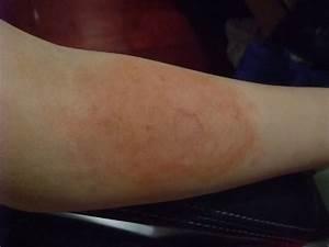 1st degree burn: Makeup by Tu | Tu Beautify