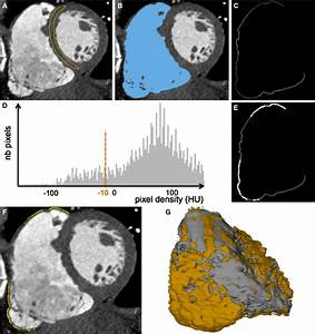 Relationship Between Mdct U2010imaged Myocardial Fat And