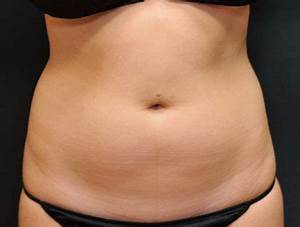 Patient #69423 Body Sculpting Before and After Photos ...