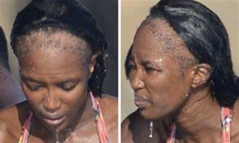 naomi campbells shocking bald patches  years