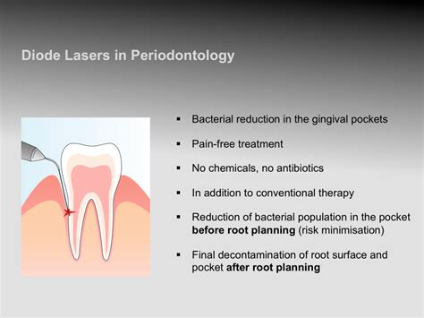 Laser Dentistry  Clinical Application « Prestige Dental Care. Divorce Laws In Vermont Campus Ministry Ideas. How To Do Credit Card Frauds. Homeland Security Forms Qbe Insurance Company. At&t Nationwide Coverage Charity Golf Outings. Where To Trade Commodities Good Web Designer. Computer Programming Degree Online. Disability Insurance Quotes Online. Public Officials Liability Insurance
