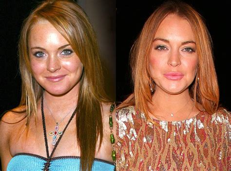 Lindsay Lohan from Celebs Who Deny Getting Plastic Surgery ...