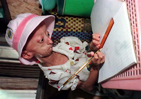 Benjamin Button Disease: The Reason Kids With Progeria