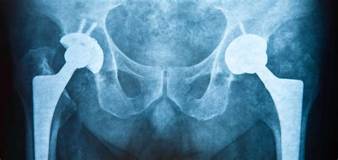 wl  cases  metal related hip implant injuries