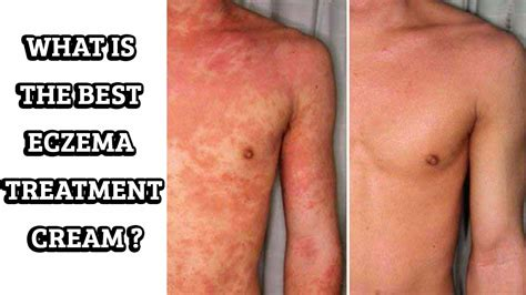 Best Treatment For Eczema The Best Eczema Treatment