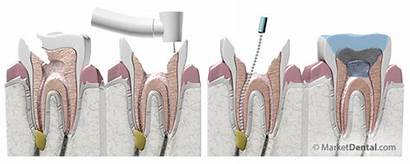 Canal Root Treatment Dental Teeth Therapy Extraction