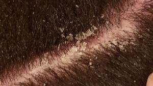 Dandruff Scratching Asmr Scalp Covered In Thick Flakes