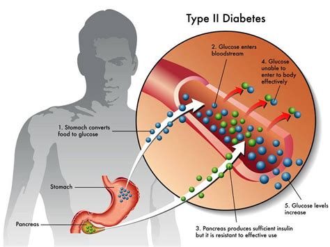 early diabetes symptoms you probably didn t know about but