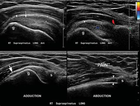 Ultrasound diagnosis of subacromial impingement for ...