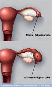 Can Pelvic Inflammatory Disease Cause Birth Defects - Doctor answers ... Uterine Diseases