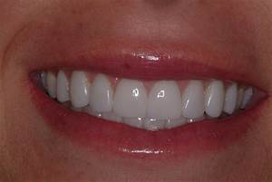 Best Teeth Veneers | www.pixshark.com - Images Galleries ...