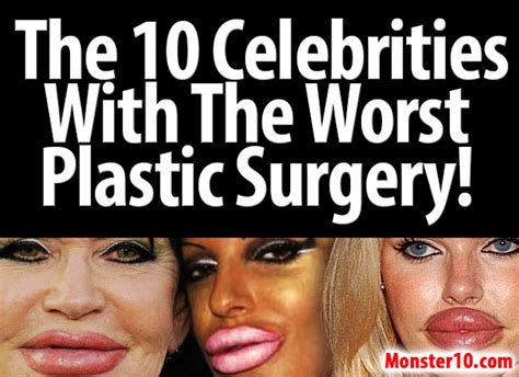 The 10 Celebrities With The Worst Plastic Surgery