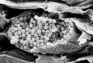 Sem Photo Of Plasmodiophora Brassicae Resting Spores In Infected Roots