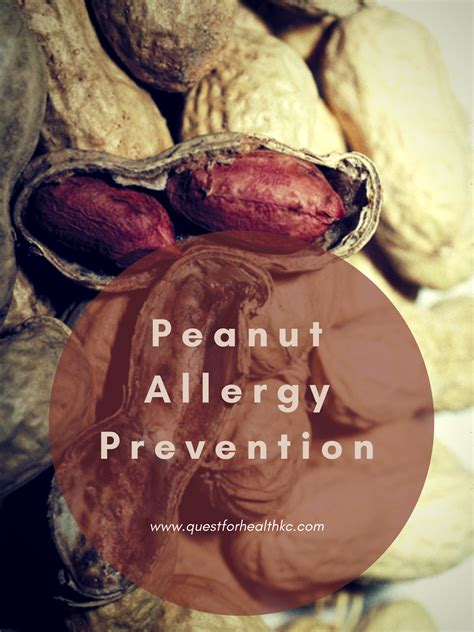 Food Allergy Archives Quest For Health Kc