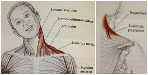 The trapezius and latissimus dorsi muscles connect the upper limb to the vertebral column. Neck And Shoulder Muscles Diagram : Upper extremity - Occupational Therapy 205 with Teresa at ...