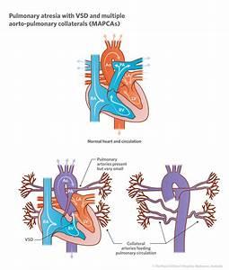 Cardiology : Pulmonary Atresia with VSD and MAPCAs