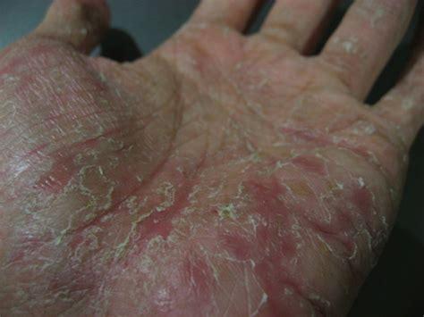 How I Treated My Pompholyx Eczema Dyshidrotic Dermatitis