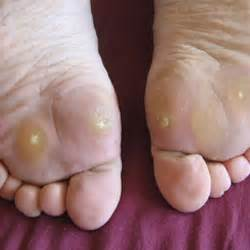 Warts How To Get Rid Of Them  Cherrywood Foot Care