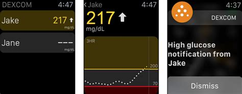 monitor real time glucose readings  apple