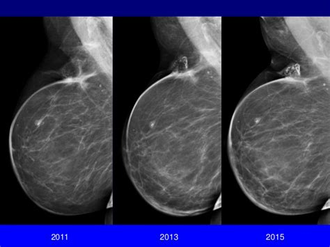 Imaging After Breast Cancer