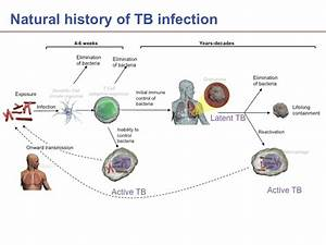 Lung rejuvination – Inflammation-associated changes – TGI ...