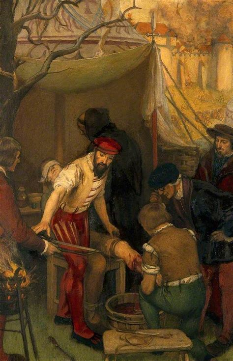 siege med 17 best images about medicine in ancient and