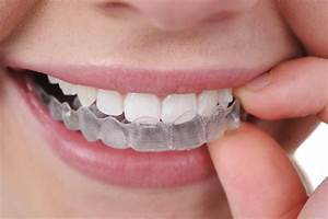 How Much Do Braces Cost in the UK? - The Dental Guide