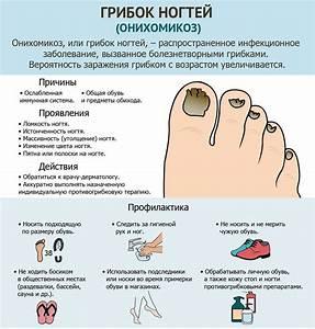 Как лечить грибок на ногах ребенку