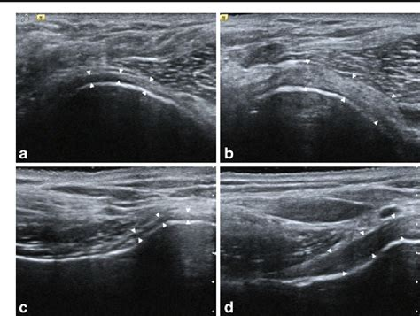 Figure 3 from Thickening of the inferior glenohumeral ...