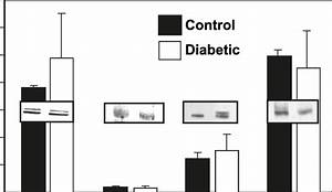 P50 Subunit Content In Control And Diabetic Tissues U2013organs