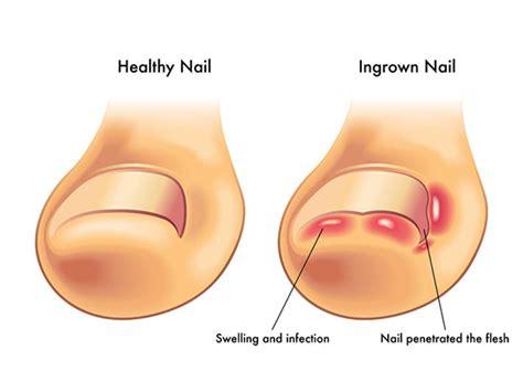 Ingrown toenails and Warts