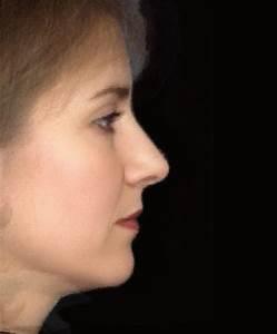 The Ideal Nasal Profile | JAMA Facial Plastic Surgery ...