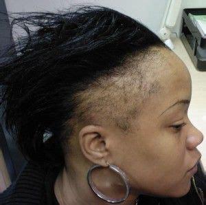 bald spot hair style the world s catalog of ideas 4587